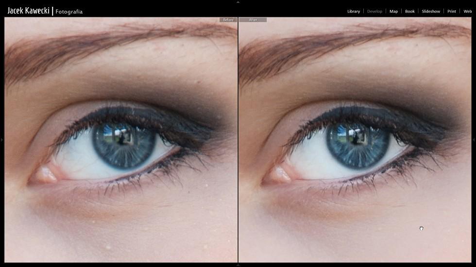 02 01 retusz bialek ocznych